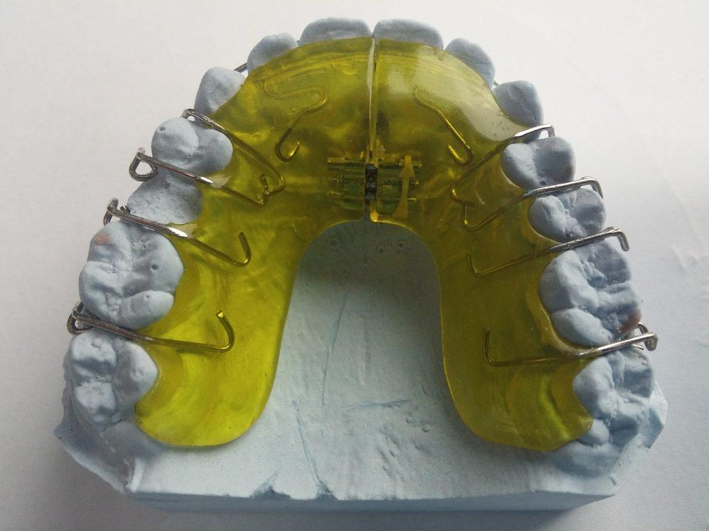 ortodoncia aparatología funcional y removible
